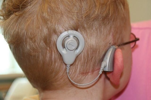 La neuroprótesis sonora permite que niños con sordera profunda, de origen coclear, desarrollen el lenguaje oral.
